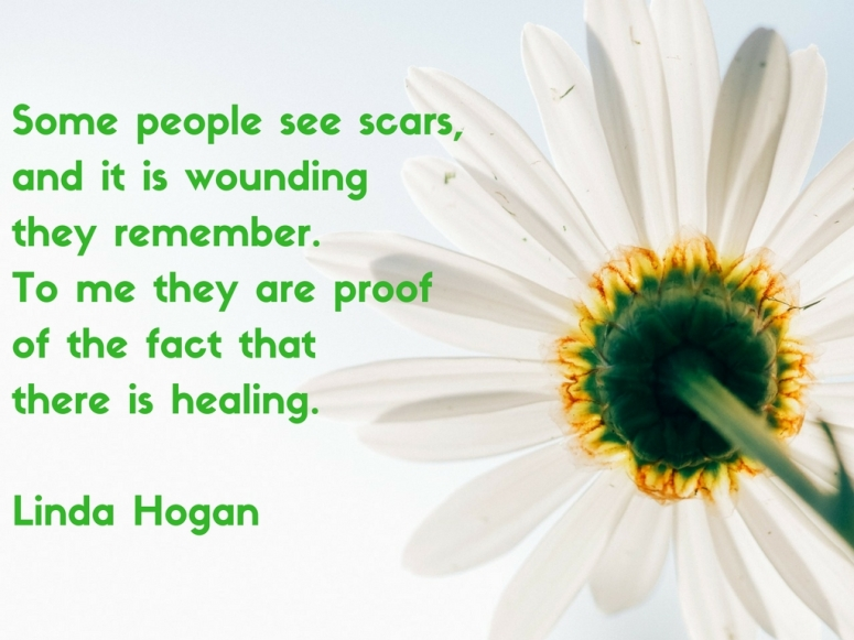 some-people-see-scars-and-it-is-wounding-they-remember-to-me-they-are-proof-of-the-fact-that-there-is-healing-linda-hogan